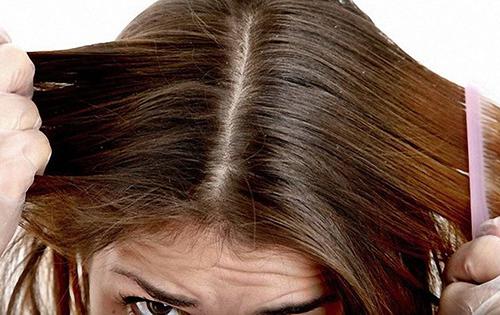 Что делать если у вас перхоть (себорея) и выпадение волос: распространенные причины и симптомы, традиционные и народные методы лечения