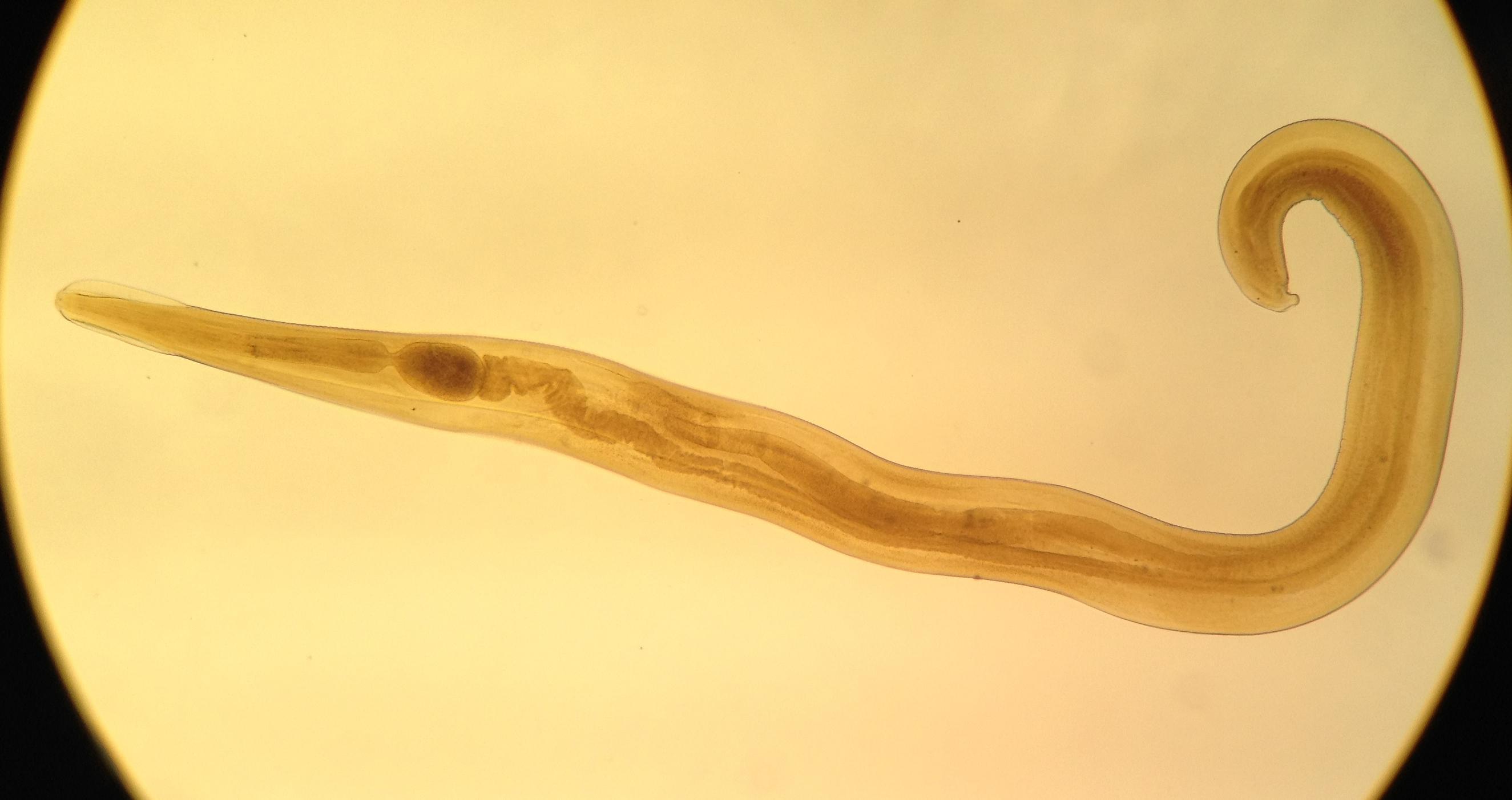 действенное средство от паразитов в организме человека
