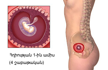 Месячные при беременности на 4 недели