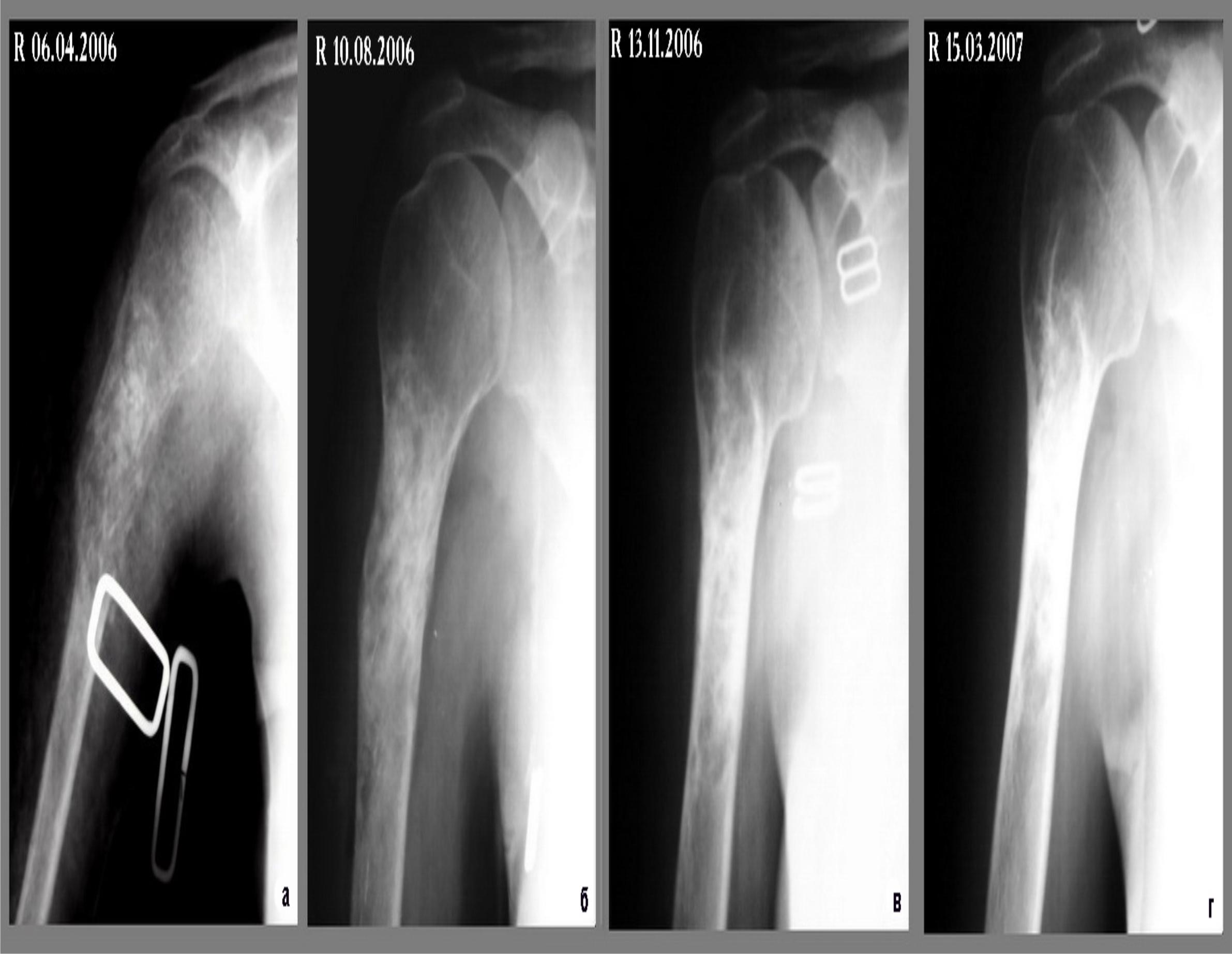 Плечевая кость, врожденный вывих фото