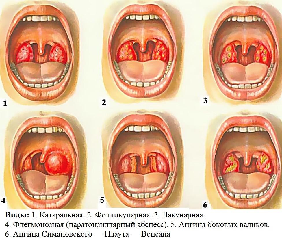Эффективные лекарства при лечении щитовидной железы