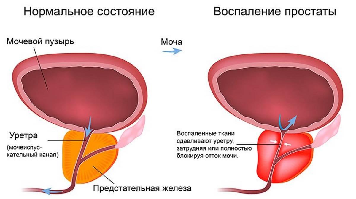 Простата давит на мочевой